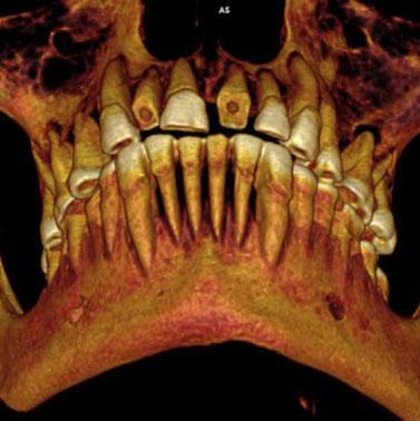 Phát hiện xác ướp chết vì sâu răng