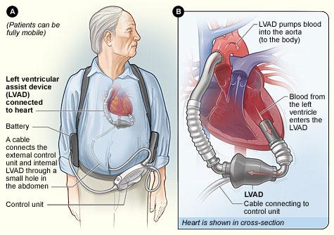 Hy vọng sống cho những bệnh nhân suy tim nặng