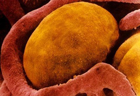 Loại mỡ màu be có thể là hướng mới để nghiên cứu các phương pháp chữa béo phì.