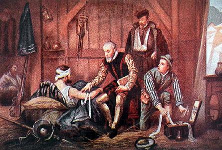 Phát minh cải tiến trong phẫu thuật của Ambroise Pare