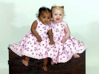 Hai chị em sinh đôi với 2 màu da trái ngược