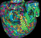Siêu máy tính mô phỏng tim người