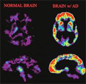 Mô hình mới nhất về nguyên nhân gây bệnh Alzheimer