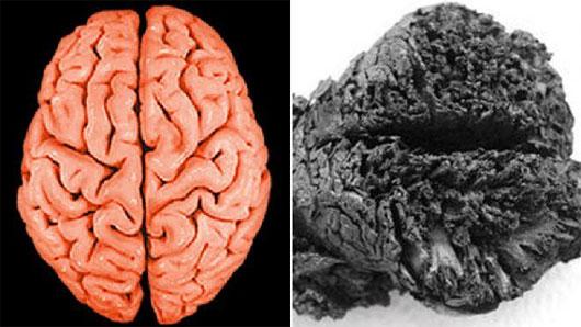 Bộ não được bảo quản tốt 4.000 năm