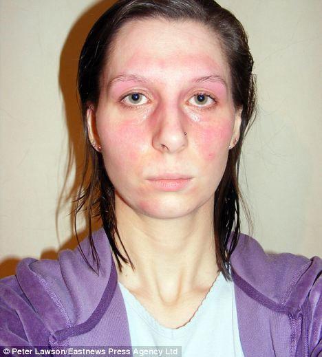 Sarah bị mẩn đỏ cả khuôn mặt mỗi khi bị dị ứng