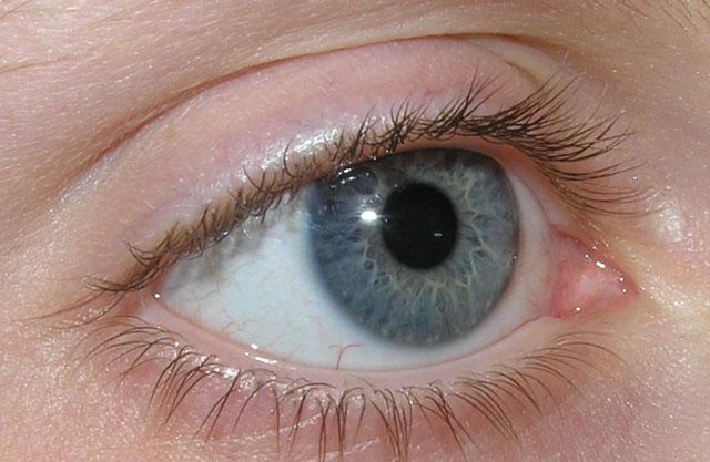 Trị bệnh mù mắt một phần bằng dòng điện kích thích không xâm lấn