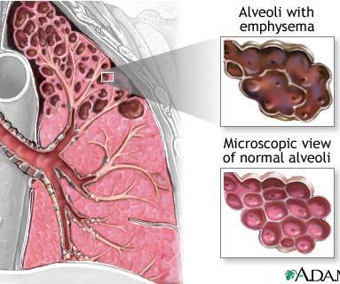 Liệu pháp tế bào thân sẽ giúp phục hồi mô phổi