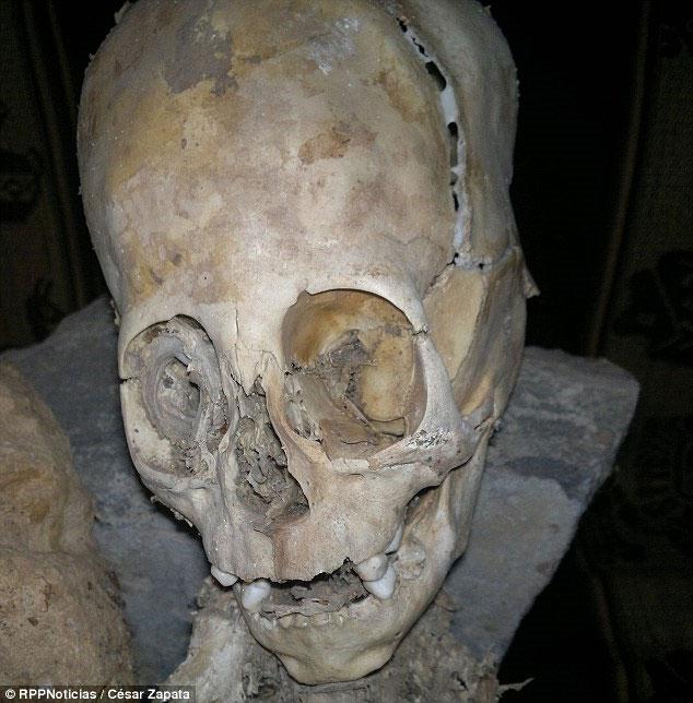Xác ướp bí ẩn với phần hộp sọ kéo dài.
