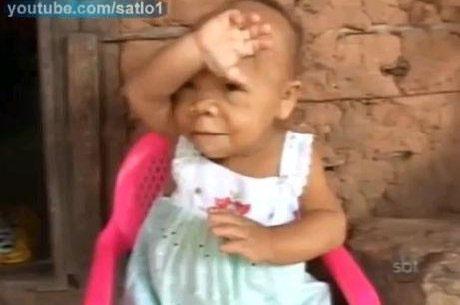 Cô gái 30 tuổi mang hình hài trẻ sơ sinh