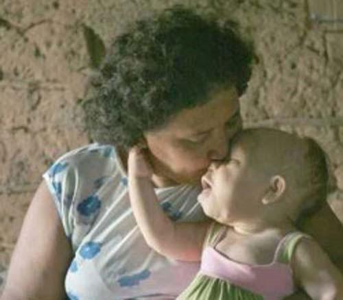 Video: Cô gái 30 tuổi mang hình hài trẻ sơ sinh
