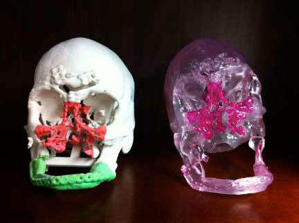 Phẫu thuật chấn thương mặt bằng công nghệ 3D