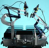 Công nghệ mới cho phép thực hiện các phẫu thuật tinh vi trên mắt