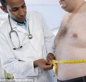 Phẫu thuật giảm cân có thể khiến xương suy yếu