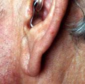 Phát hiện bệnh tim nhờ các dấu hiệu lão hoá