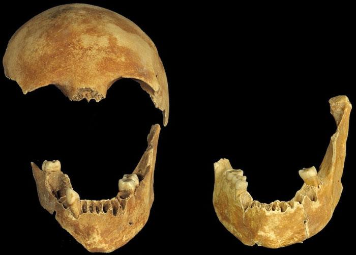 Mảnh hộp sọ của bộ xương cặp vợ chồng chết bí ẩn trong giếng cổ.