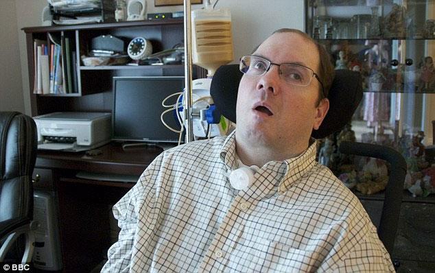Các nhà khoa học đã nghiên cứu não bộ của bệnh nhân Scott Routley.