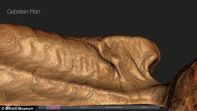 Vết thương dưới xương bả vai bên trái của Ginger gây ra tử vong.