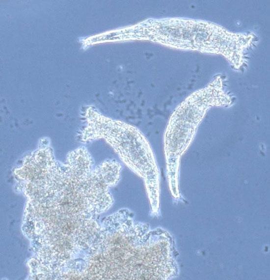 """Bdelloid rotifer đã tạo thành các """"Tây Lương nữ quốc"""" kỳ lạ trong thế giới loài vật."""