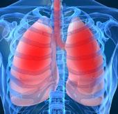 Mối đe dọa lớn của bệnh tắc nghẽn phổi mãn tính