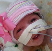 Cô bé chào đời với tim ngoài cơ thể