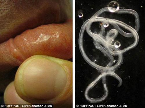 Những nhà khoa học nuôi ký sinh trùng trong cơ thể