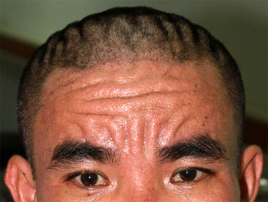 Phát hiện ca bệnh lạ về da đầu tiên trên thế giới