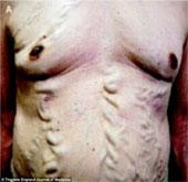 Bệnh lạ: Mạch máu nổi cuồn cuộn như rắn dưới da