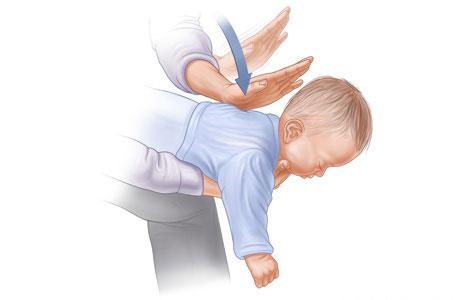 Sơ cứu trẻ em bị mắc dị vật