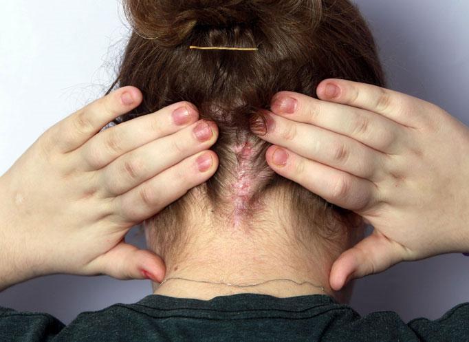 Carolyn cho thấy những vết sẹo khi các bác sĩ tiến hành cắt bỏ một hình vuông trên hộp sọ của cô.