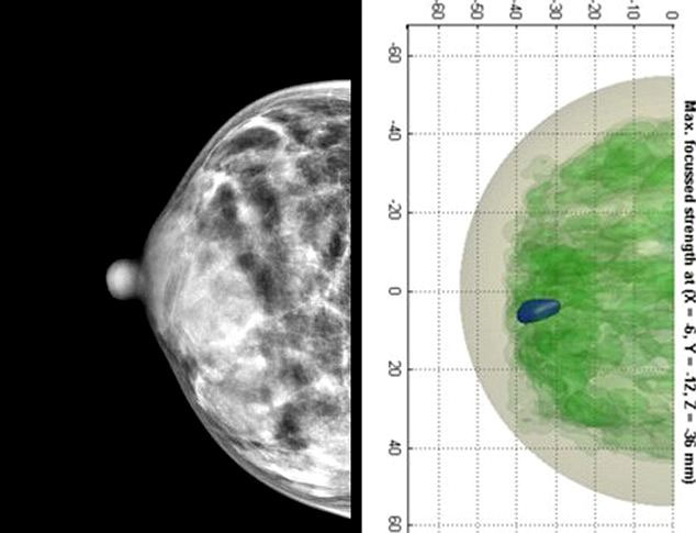 Phát hiện ung thư vú bằng công nghệ dò mìn