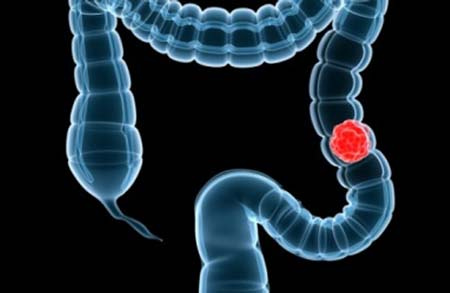 Kiểm tra hơi thở giúp phát hiện ung thư đại trực tràng