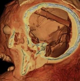 Thợ ướp xác Ai Cập quên đồ nghề trong não người chết