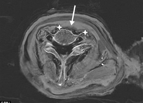 Hình ảnh ghi lại từ phương pháp chụp CT (chụp cắt lớp vi tính - có sự trợ giúp của máy tính) xác ướp