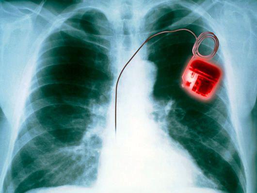 """Việc cấy máy trợ tim vào ngực sẽ trở thành quá khứ khi """"máy trợ tim sinh học"""" ra đời."""