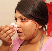 Video: Cô gái khóc và đổ mồ hôi ra máu
