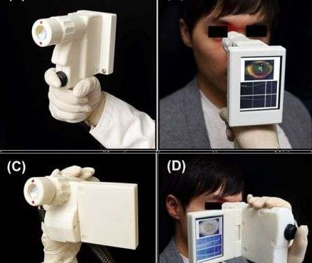 Kiểm tra mắt nhanh gọn với máy quét cầm tay