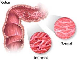 Vi khuẩn có trong sữa bò gây bệnh đường ruột Crohn