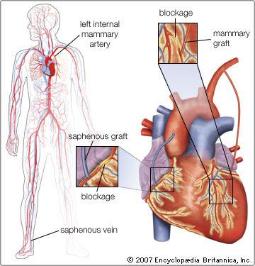 Phụ nữ châu Á đang gặp nguy cơ khiếm khuyết về động mạch