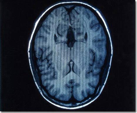 """Thiết bị """"đọc não"""" có thể dự đoán những gì con người nhìn thấy"""