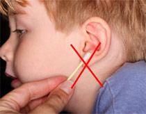 Không nên lấy ráy tai