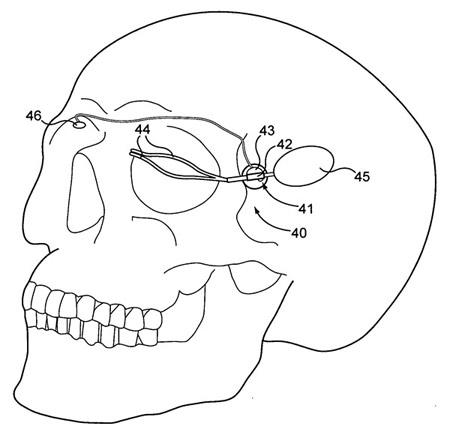 Cơ mặt giả cho người tàn tật