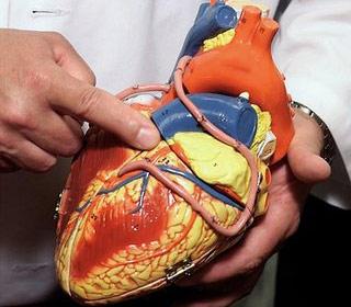"""""""Siêu thuốc"""" chữa bệnh tim và đột quỵ"""