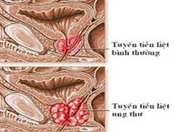 Thuốc mới điều trị ung thư tiền liệt tuyến