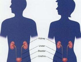 Nữ qua đời sớm hơn nam vì ung thư bàng quang