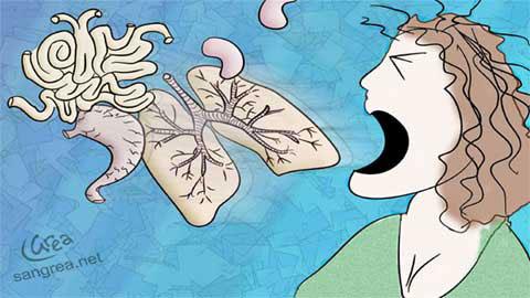 Thêm người chết vì dịch hạch thể phổi ở Trung Quốc