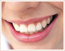 Tại sao nên thường xuyên lấy cao răng