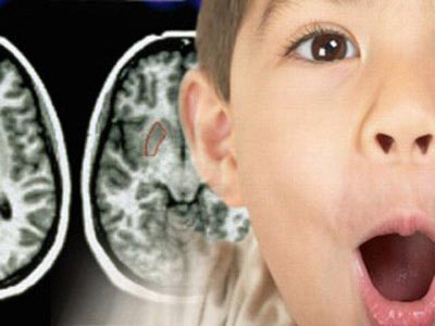 5 tuổi và sự hoàn thiện kỳ lạ của thị giác