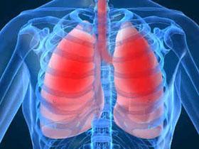 Hơn 1 triệu trẻ em chết do viêm phổi mỗi năm