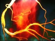 Hút thuốc, ăn nhiều cholesterol khiến đàn ông chết sớm 10 năm
