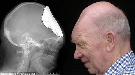 Mọc lại xương sọ sau 5 thập kỷ